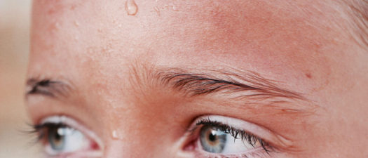 Excessive Sweating: Nerves, Overheating, or Hyperhidrosis